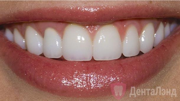 After-Чистка зубов методом Air Flow