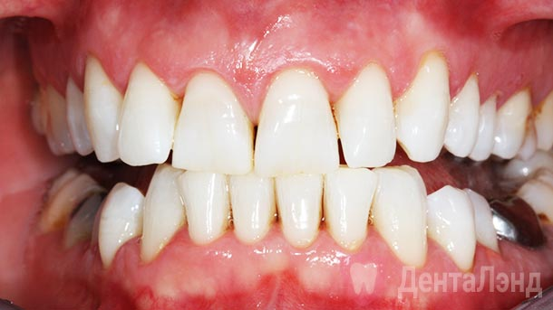 After-Чистка зубов ультразвуком
