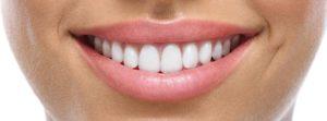 Имплантация зубов в сочетании с косметологией