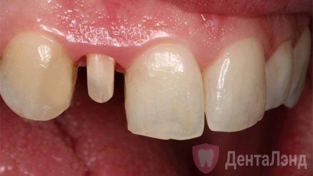 Before-Металлокерамическая коронка на передний зуб
