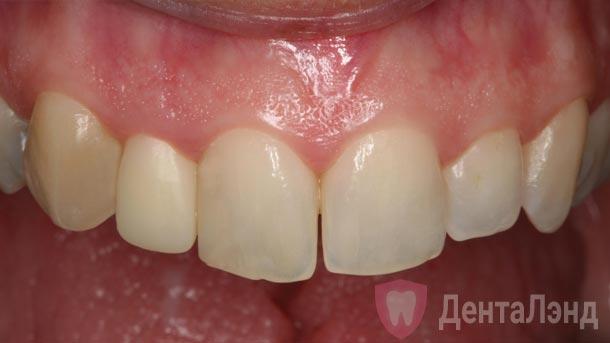After-Металлокерамическая коронка на передний зуб