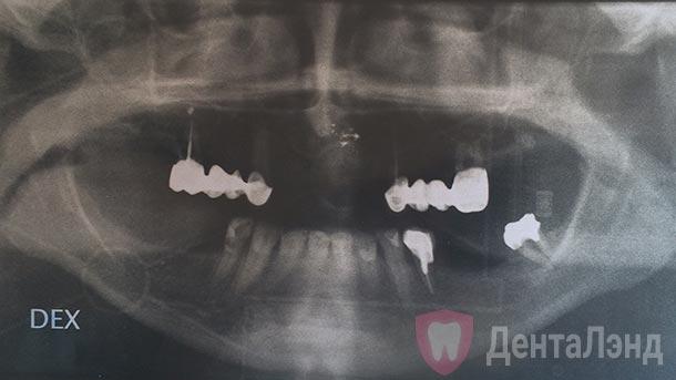 Before-Рентген до и после имплантации