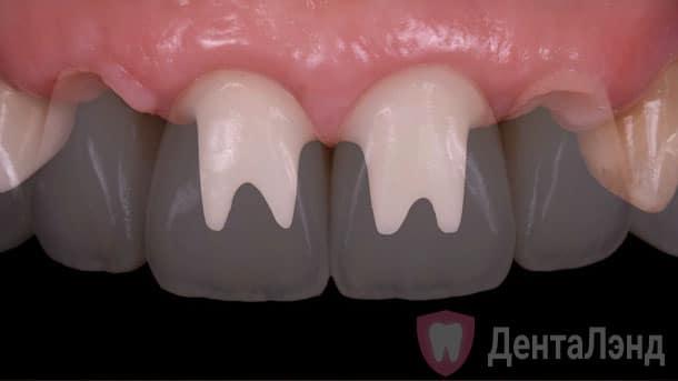 Before-Импланты Штрауманн на верхние передние зубы