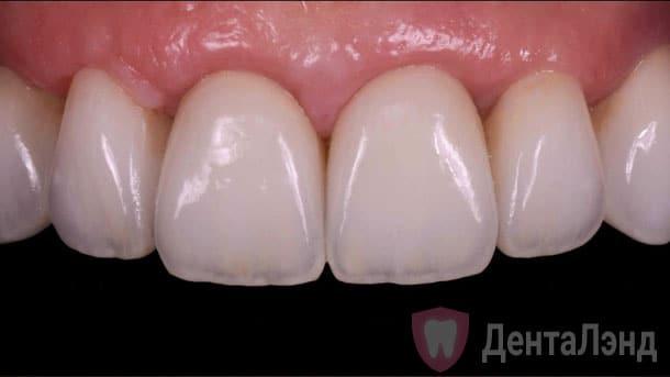 After-Импланты Штрауманн на верхние передние зубы