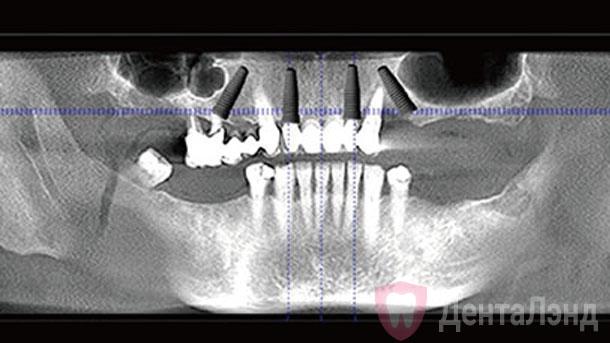 Before-Имплантация All-on-4 на верхней челюсти рентген
