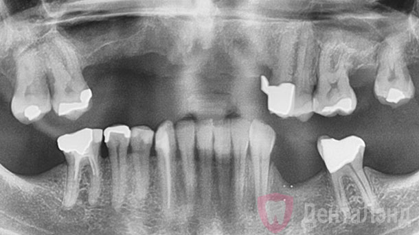 Before-Имплантация All-on-6 на верхней челюсти рентген