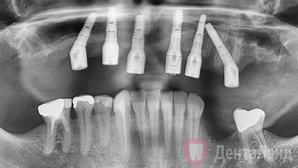 After-Имплантация All-on-6 на верхней челюсти рентген