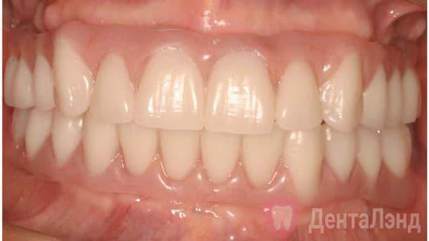 After-Имплантация All-on-4 всей челюсти