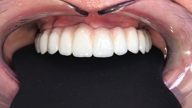 After-Имплантаты осстем, верхняя челюсть несъемный мост из диоксида циркония